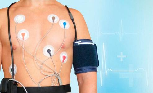Суточное мониторирование артериального давления (СМАД) в Запорожье