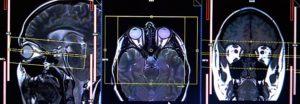 МРТ глазных орбит и зрительных нервов в Запорожье