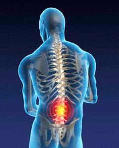 МРТ поясницы в Запорожье при болях в спине
